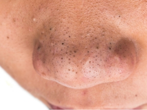 Natural Treatment For Blackheads