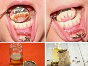 Natural Ways For White Sparkling Teeth