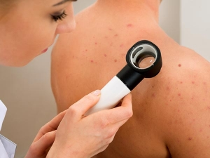Health Reasons Behind Pimples On Body Parts