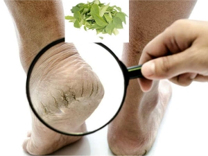 Home Remedies Treat Cracked Heels