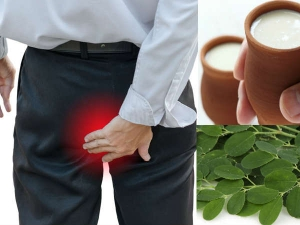 Simple Home Remedies Treat Piles