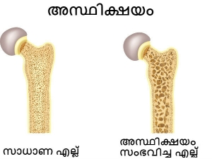 International Women S Day Why Are Women More Prone To Osteoporosis