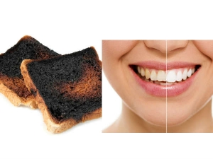Home Remedies Get Instant Whiteness Teeth