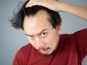 Home Remedies Treat Hair Loss Fast