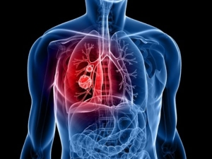 Early Warning Signs Lung Cancer
