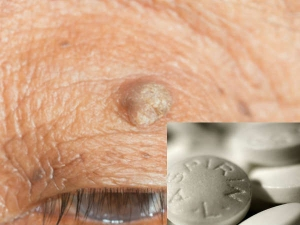 Home Remedies Permanently Remove Warts