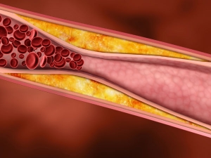 Foods To Increase Platelets Count Naturally