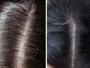 Leaf Treatment For Dandruff
