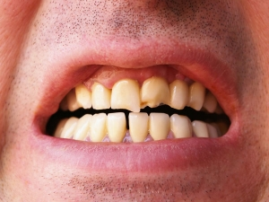 Home Remedies Remove Stains From Teeth