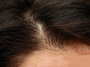 Permanent Home Remedies For Hair Loss