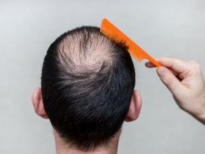 Effective Home Remedies And Tips To Control Hair Fall