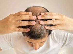 Essential Oils Severe Baldness