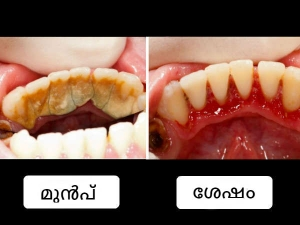 Amazing Home Remedies Remove Tartar From Teeth