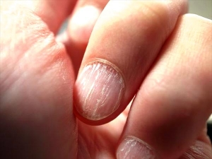 Nail Can Tell You About Your Health