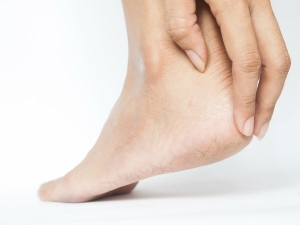 Home Remedies For Smelly And Cracked Foot