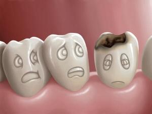 Home Made Tips Whiten Yellow Teeth