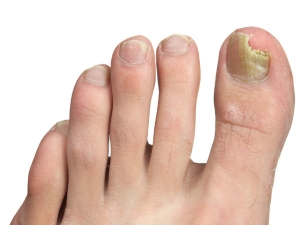 Natural Remedies For Nail Infection