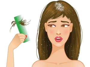 Effective Ayurvedic Ways To Cure Dandruff Easily