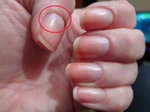Size Of Lunula Reveals About Your Health