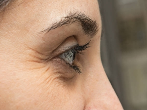 Natural Remedies For Under Eye Wrinkles