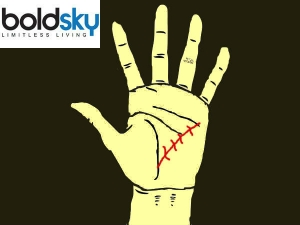 Palmistry Defines Impotency Pregnancy Related Issues