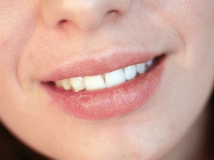 Home Made Tips Get Rid Of Dry Lips