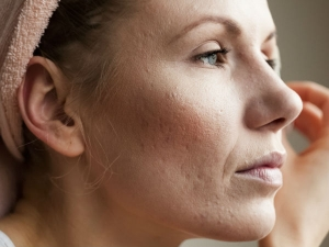 Natural Remedies To Get Rid Of Flaky Skin