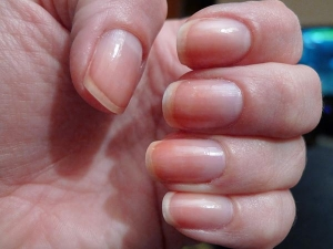 White Spot On Nail Reveals About You
