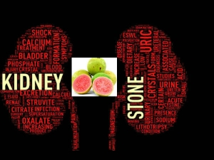 Home Remedies Treat Kidney Stone Naturally