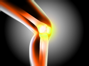 Knee Pain Reveals Other Serious Health Issues