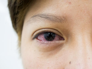 Watery Eyes Symptoms Causes Treatment