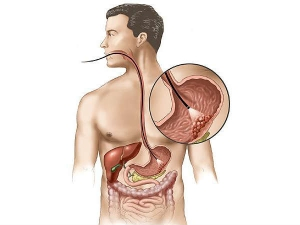 Esophageal Cancer Causes Symptoms And Risk Factors
