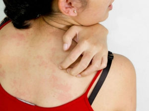 Natural Remedies For Skin Sensitisation