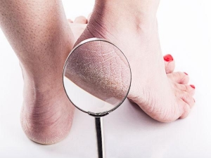 How To Remove Flaky Skin From Your Feet And Legs
