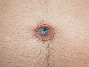 How To Treat Belly Button Discharge Causes And Treatment With Natural Remedies