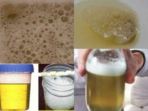 Foam In Your Excretion Is An Indication Of Early Sign Of Kidney