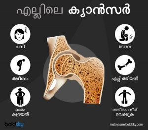 Bone Cancer Types Causes And Symptoms