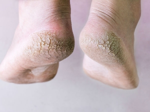 Top Ten Natural Remedies For Cracked Heels