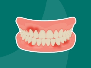 Receding Gums Symptoms Causes And Treatments