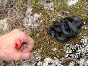 Mistakes Made By People Who Gets Snake Bite