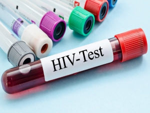 Ways Hiv Cannot Be Spread