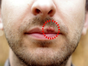Home Remedies To Get Rid Of Herpes