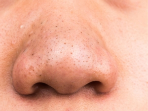 Potato Lemon Juice For Blackheads