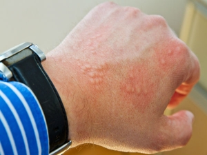 Best Ways To Treat Scabies At Home
