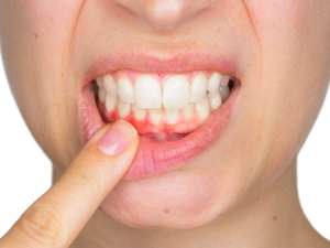 Oral Health Issues Associates With Diabetes