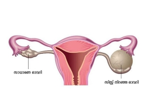 Can Ovarian Cysts Affect Your Ability To Get Pregnant