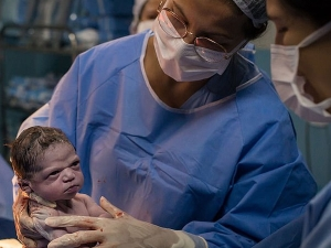 Picture Of Newborn Looking Angrily At Doctor