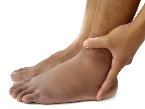 Diabetic Oedema And How To Deal With It