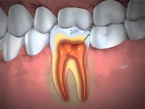 Headache Can Be A Sign Of Dental Health Issues