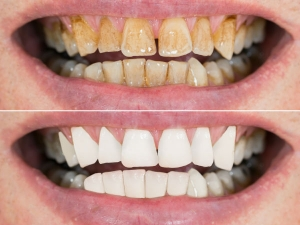 Ginger Salt And Honey For Teeth Whitening